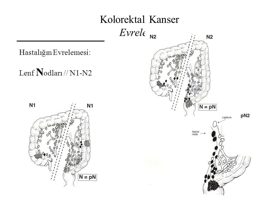 Kolorektal Kanser Evreleme Hastalığın Evrelemesi: N Lenf N odları // N1-N2