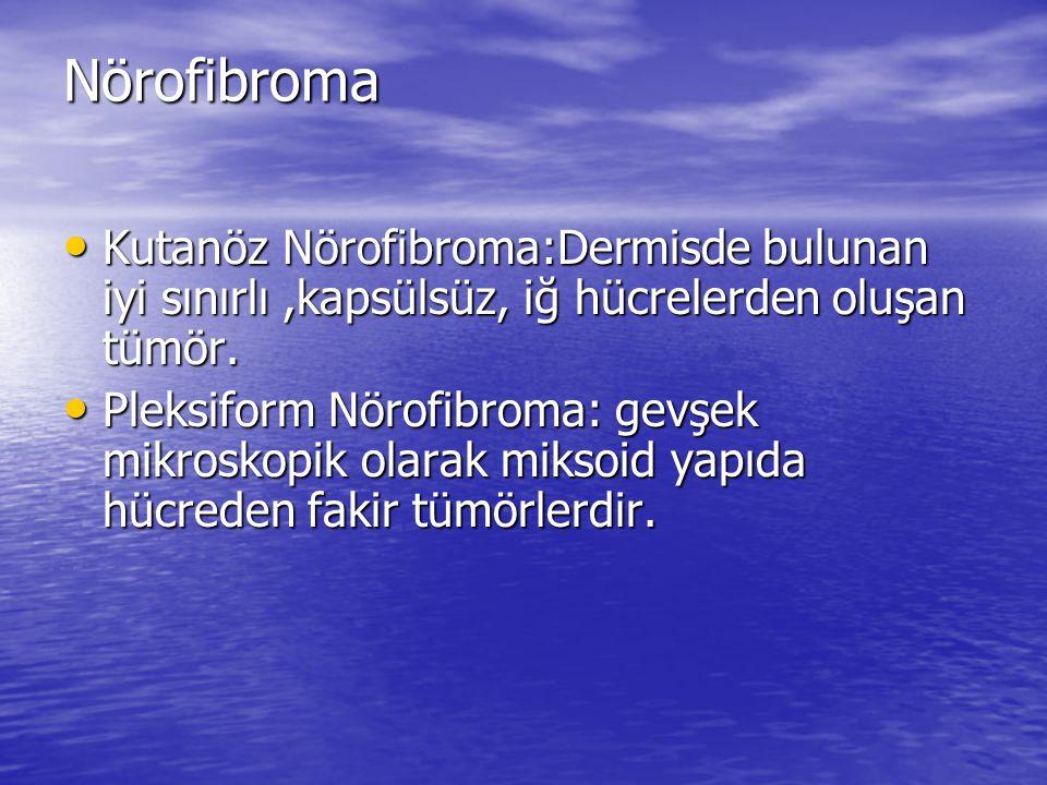 Nörofibroma Kutanöz Nörofibroma:Dermisde bulunan iyi sınırlı,kapsülsüz, iğ hücrelerden oluşan tümör.