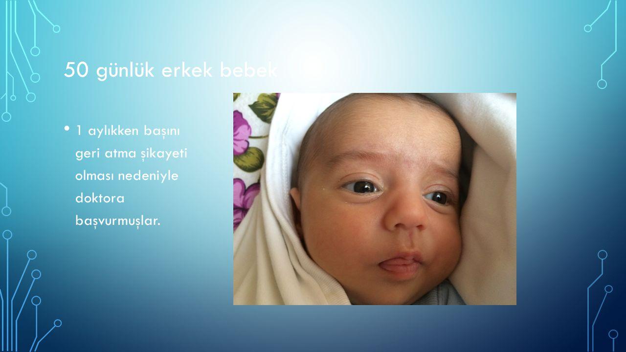 50 günlük erkek bebek 1 aylıkken başını geri atma şikayeti olması nedeniyle doktora başvurmuşlar.