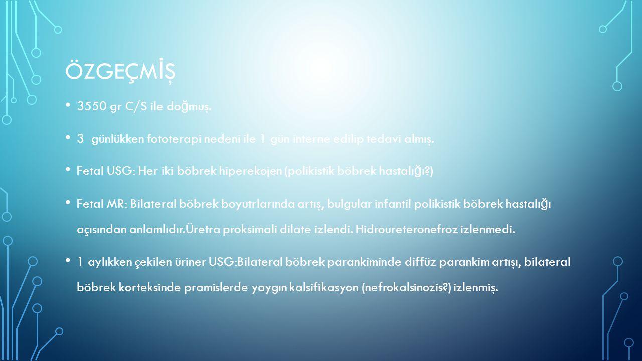 WILLIAMS SENDROMU Kas iskelet sisteminde:halluk valgus,5.parmakta klinodaktili,hipoplazik tırnak,pektus ekskavatum,kifoz ve skolyoz ve garip yürüyüş olabilir.