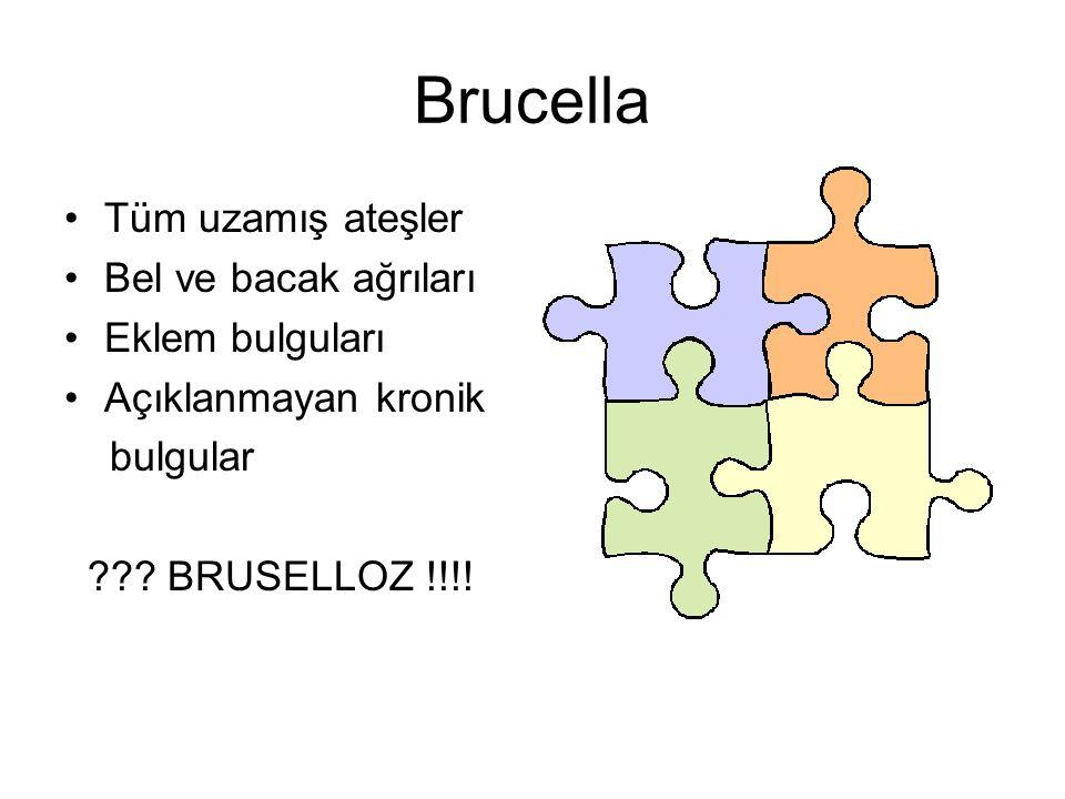 Brucella Tüm uzamış ateşler Bel ve bacak ağrıları Eklem bulguları Açıklanmayan kronik bulgular ??? BRUSELLOZ !!!!