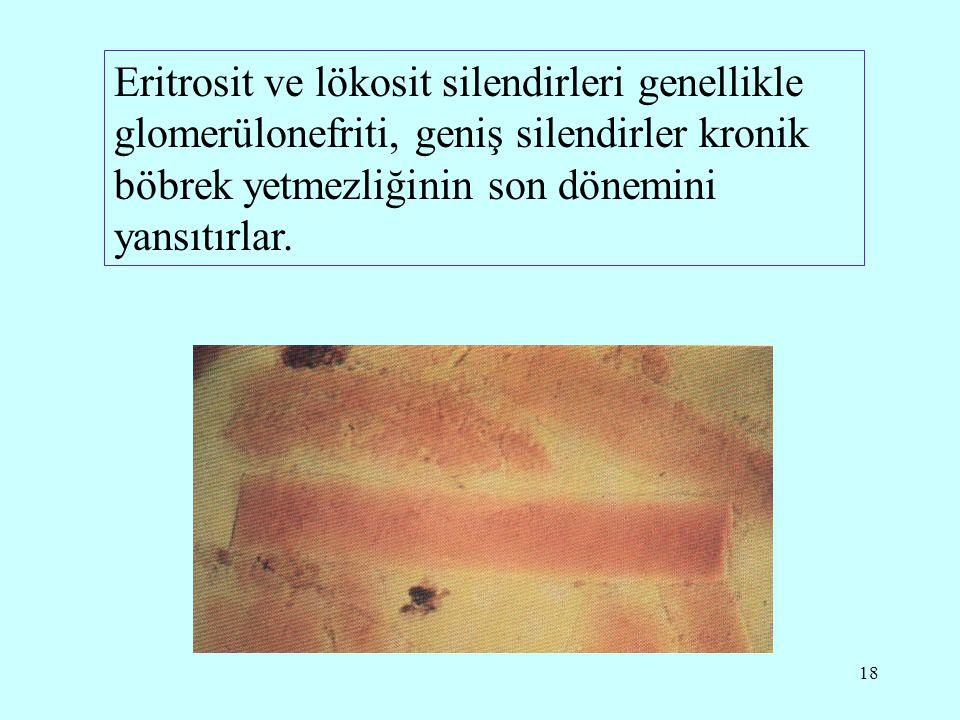 18 Eritrosit ve lökosit silendirleri genellikle glomerülonefriti, geniş silendirler kronik böbrek yetmezliğinin son dönemini yansıtırlar.