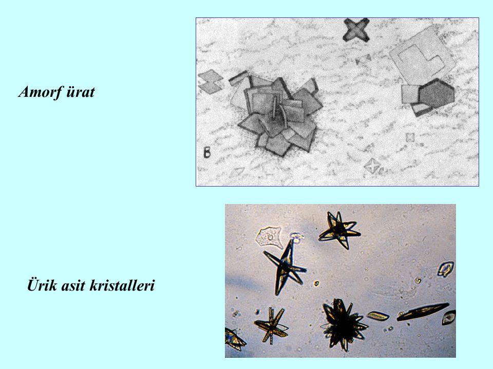 21 Amorf ürat Ürik asit kristalleri