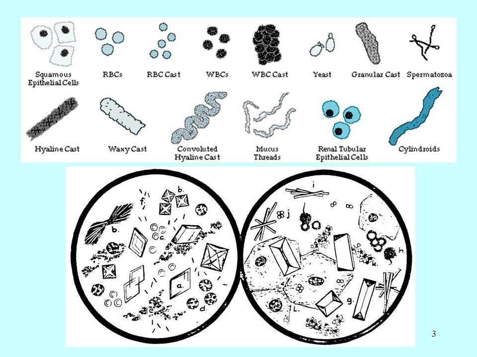 24 Kalsiyum oksalat kristalleri Tersiyer kalsiyum fosfat kristalleri