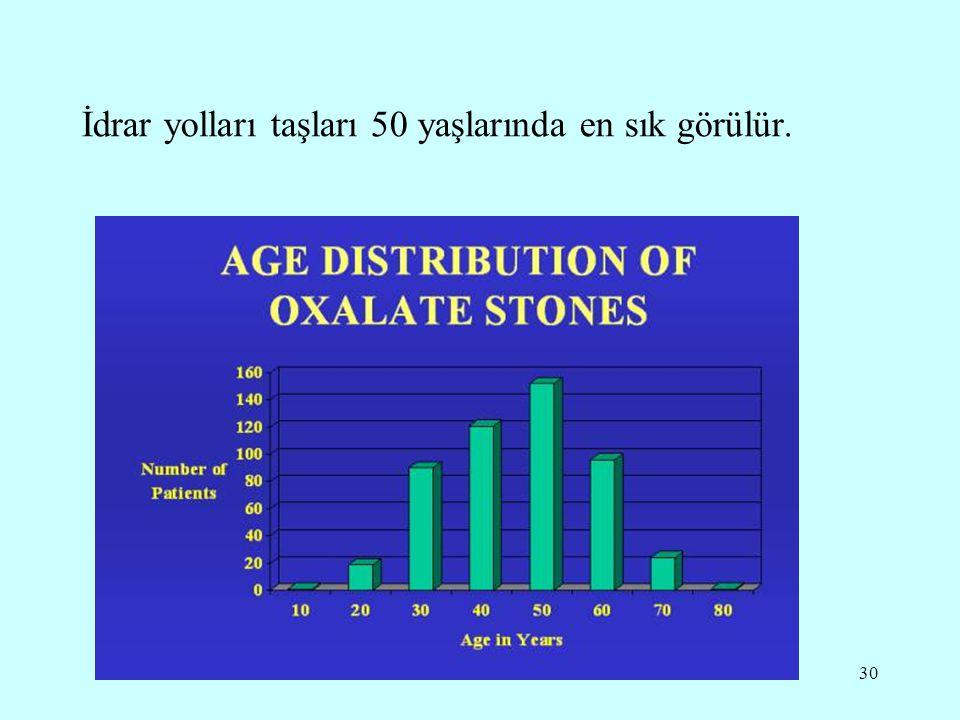 30 İdrar yolları taşları 50 yaşlarında en sık görülür.