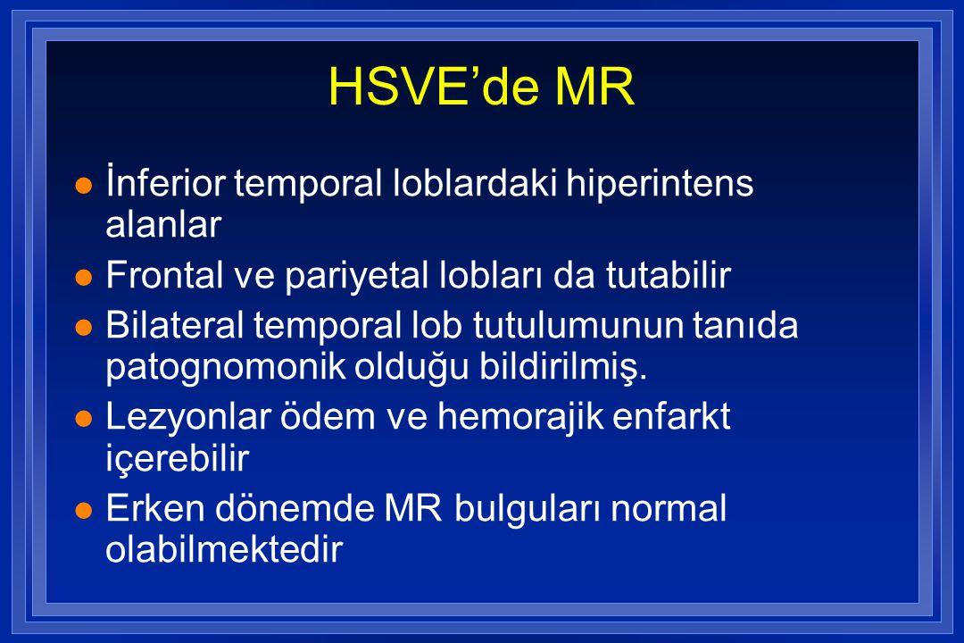 HSVE'de MR l İnferior temporal loblardaki hiperintens alanlar l Frontal ve pariyetal lobları da tutabilir l Bilateral temporal lob tutulumunun tanıda