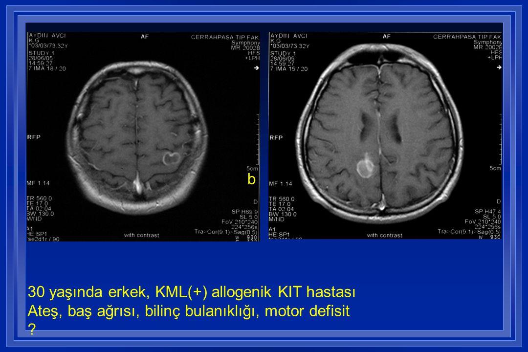 b 30 yaşında erkek, KML(+) allogenik KIT hastası Ateş, baş ağrısı, bilinç bulanıklığı, motor defisit ?