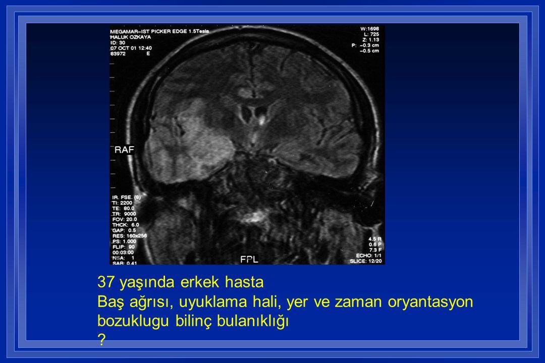 37 yaşında erkek hasta Baş ağrısı, uyuklama hali, yer ve zaman oryantasyon bozuklugu bilinç bulanıklığı ?