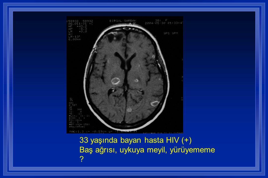 33 yaşında bayan hasta HIV (+) Baş ağrısı, uykuya meyil, yürüyememe ?