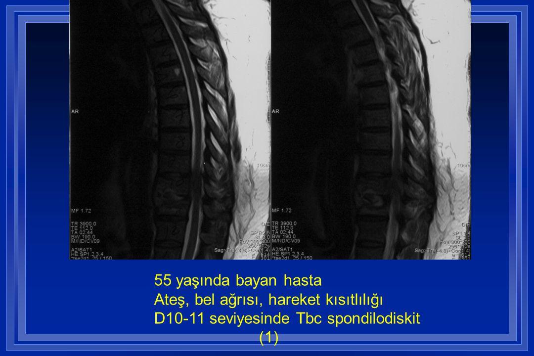 55 yaşında bayan hasta Ateş, bel ağrısı, hareket kısıtlılığı D10-11 seviyesinde Tbc spondilodiskit (1)