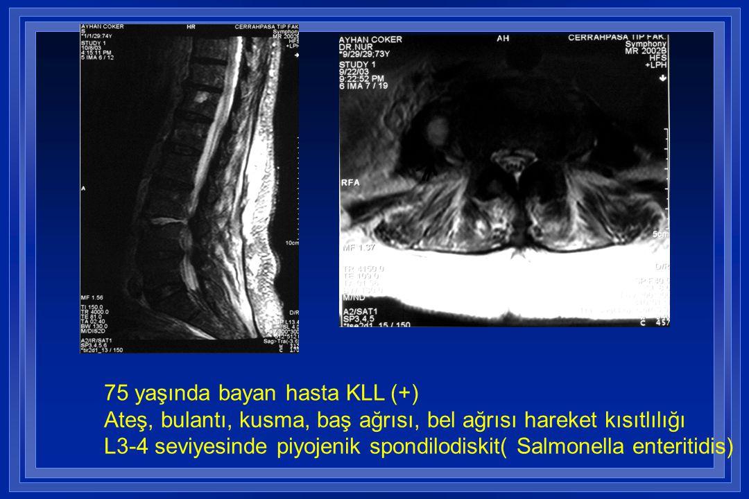 ) 75 yaşında bayan hasta KLL (+) Ateş, bulantı, kusma, baş ağrısı, bel ağrısı hareket kısıtlılığı L3-4 seviyesinde piyojenik spondilodiskit( Salmonell