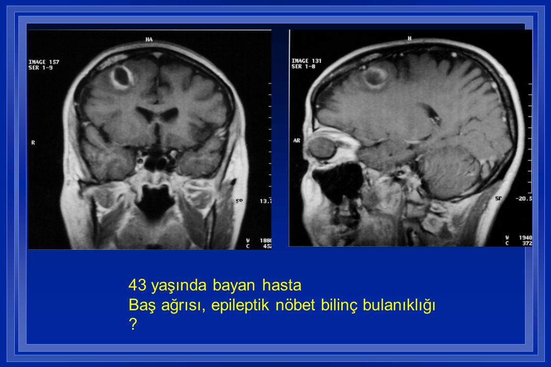 43 yaşında bayan hasta Baş ağrısı, epileptik nöbet bilinç bulanıklığı ?