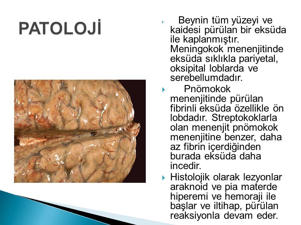  Beynin tüm yüzeyi ve kaidesi pürülan bir eksüda ile kaplanmıştır. Meningokok menenjitinde eksüda sıklıkla pariyetal, oksipital loblarda ve serebellu