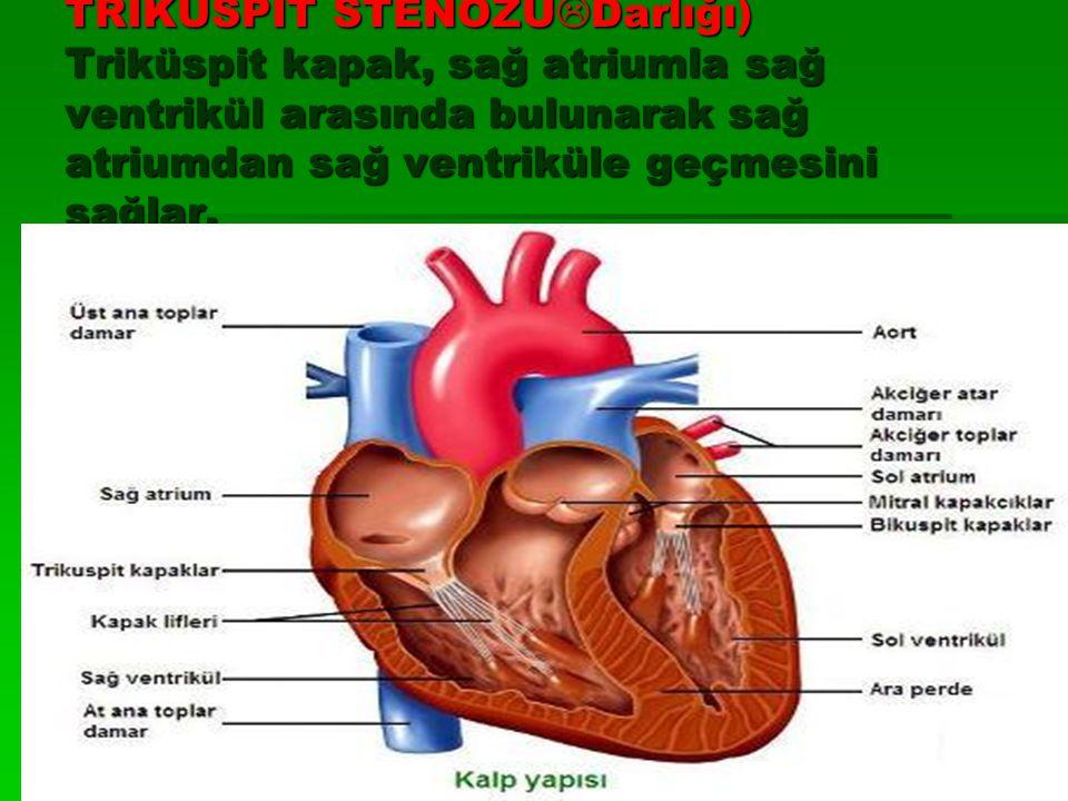 TRİKÜSPİT STENOZU  Darlığı) Triküspit kapak, sağ atriumla sağ ventrikül arasında bulunarak sağ atriumdan sağ ventriküle geçmesini sağlar.