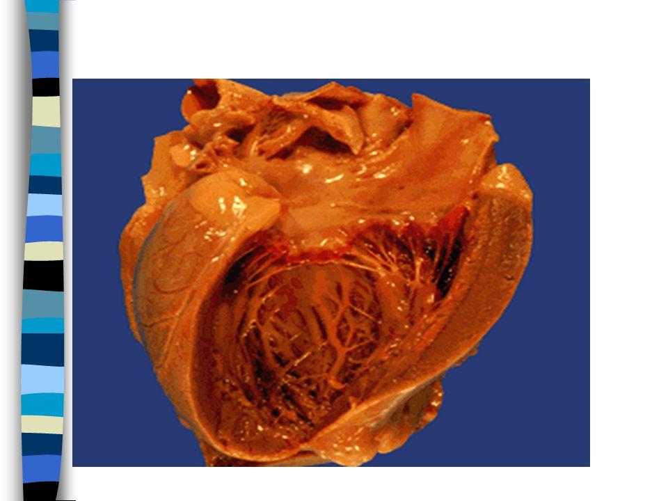 Sol kalp yetmezliğinin kalp dışı etkileri n Akciğerler: pulmoner ven basınç  n akciğer konjesyon, ödem perivaskuler ve interstisiyel transüda, alveol septalarının progressif ödem ile genişlemesi, alveol boşlukları içinde ödem n hemosiderin içeren makrofajlar-kalp hatası hücreleri n Kl:Dispne, ortopne,PND,öksürük