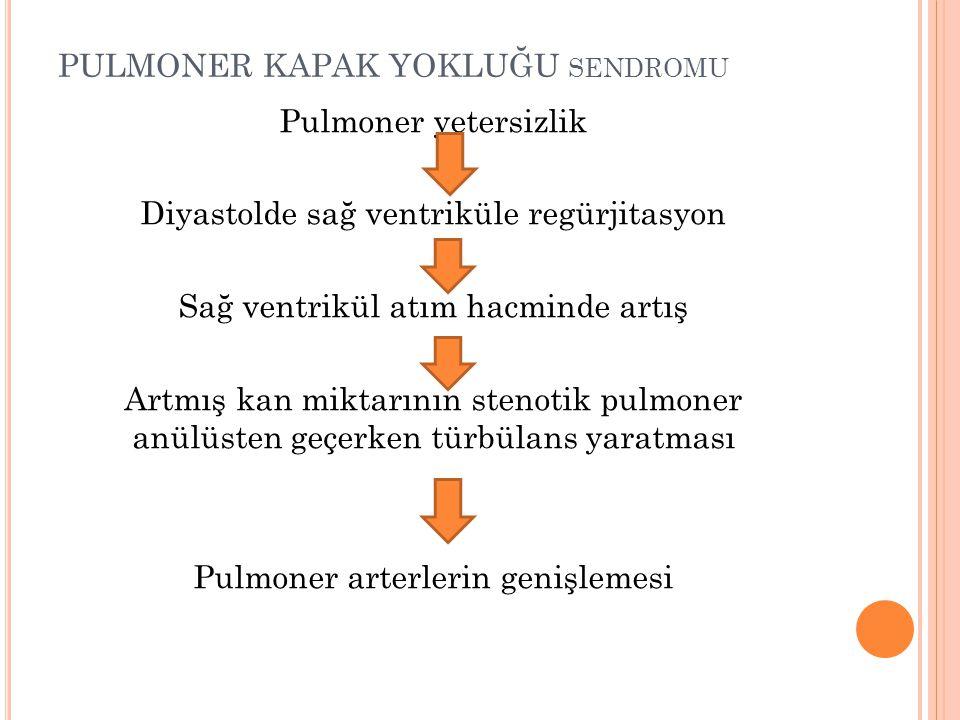 PULMONER KAPAK YOKLUĞU SENDROMU Pulmoner yetersizlik Diyastolde sağ ventriküle regürjitasyon Sağ ventrikül atım hacminde artış Artmış kan miktarının s