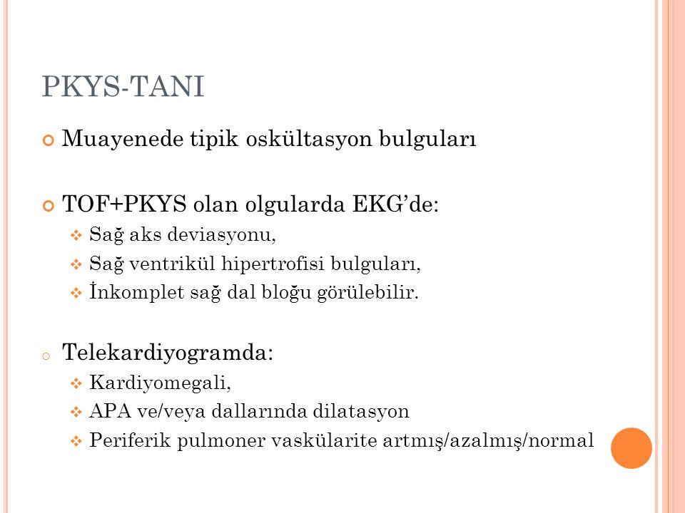 PKYS-TANI Muayenede tipik oskültasyon bulguları TOF+PKYS olan olgularda EKG'de:  Sağ aks deviasyonu,  Sağ ventrikül hipertrofisi bulguları,  İnkomp
