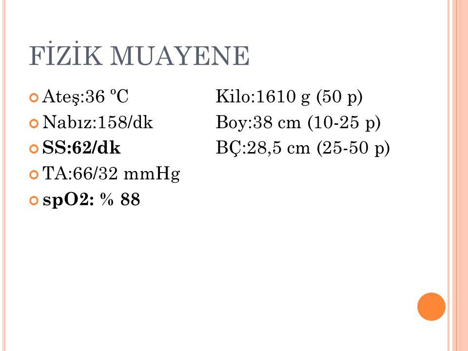 FİZİK MUAYENE Ateş:36 ºCKilo:1610 g (50 p) Nabız:158/dkBoy:38 cm (10-25 p) SS:62/dk BÇ:28,5 cm (25-50 p) TA:66/32 mmHg spO2: % 88