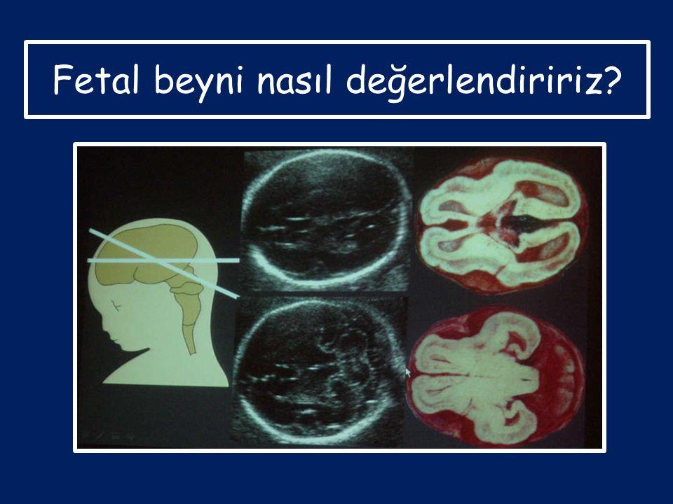 Fetal beyni nasıl değerlendiririz?