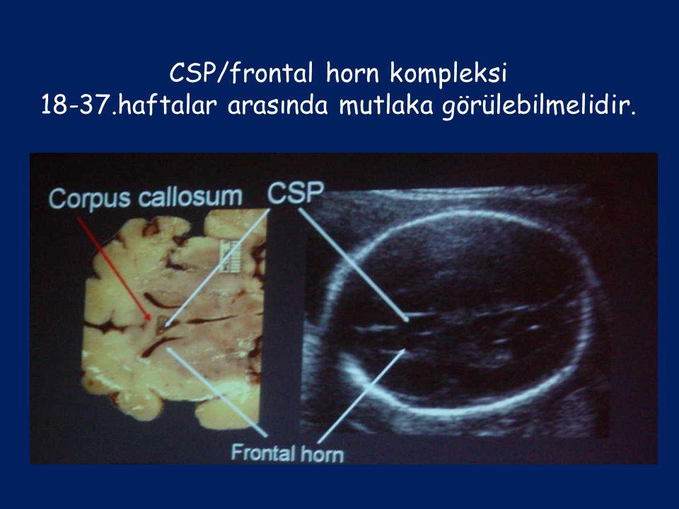 CSP/frontal horn kompleksi 18-37.haftalar arasında mutlaka görülebilmelidir.