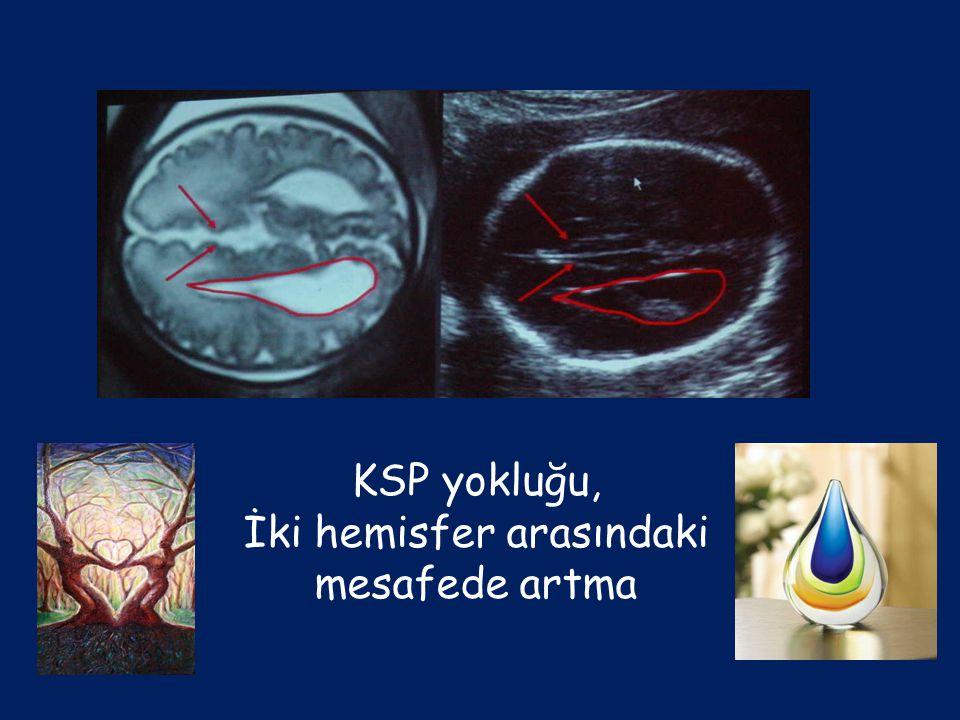 KSP yokluğu, İki hemisfer arasındaki mesafede artma