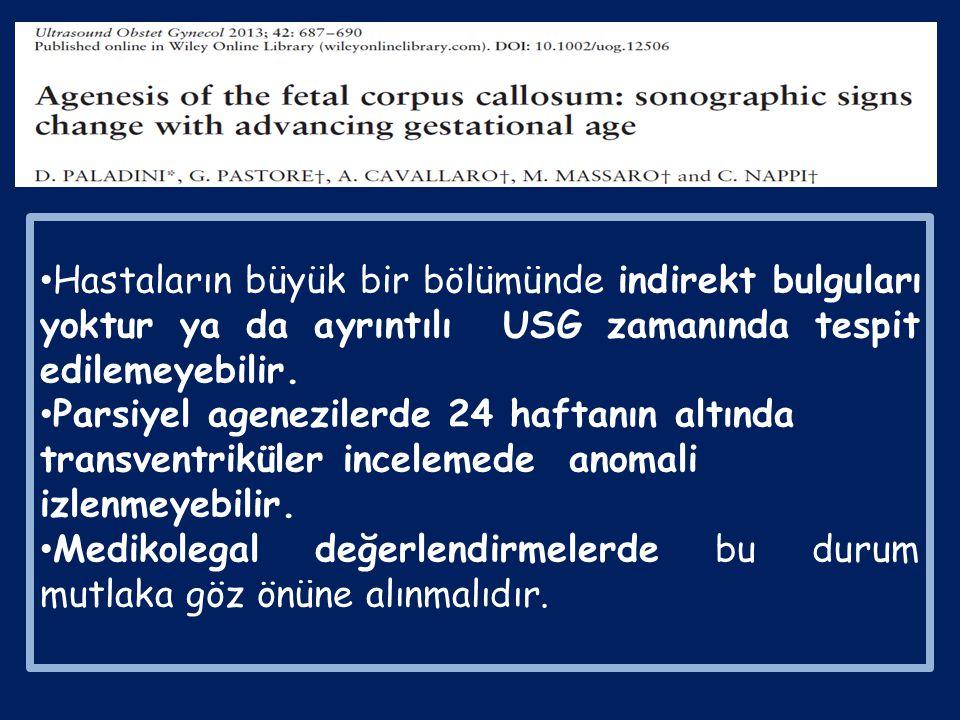 54 ACC : 31 cACC, 23 pACC 24 hafta öncesi 24 hafta sonrası Kolposefali% 20% 68 pACC % 63 CSP (+) % 33 ventrikülomegali yok % 17.5 kromozomal anomali%