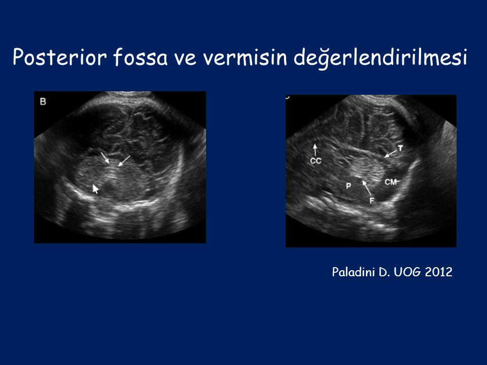 Posterior fossa ve vermisin değerlendirilmesi Paladini D. UOG 2012