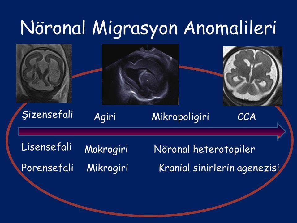 Nöronal Migrasyon Anomalileri Şizensefali Lisensefali Porensefali Agiri Makrogiri Mikrogiri Mikropoligiri Nöronal heterotopiler Kranial sinirlerin age