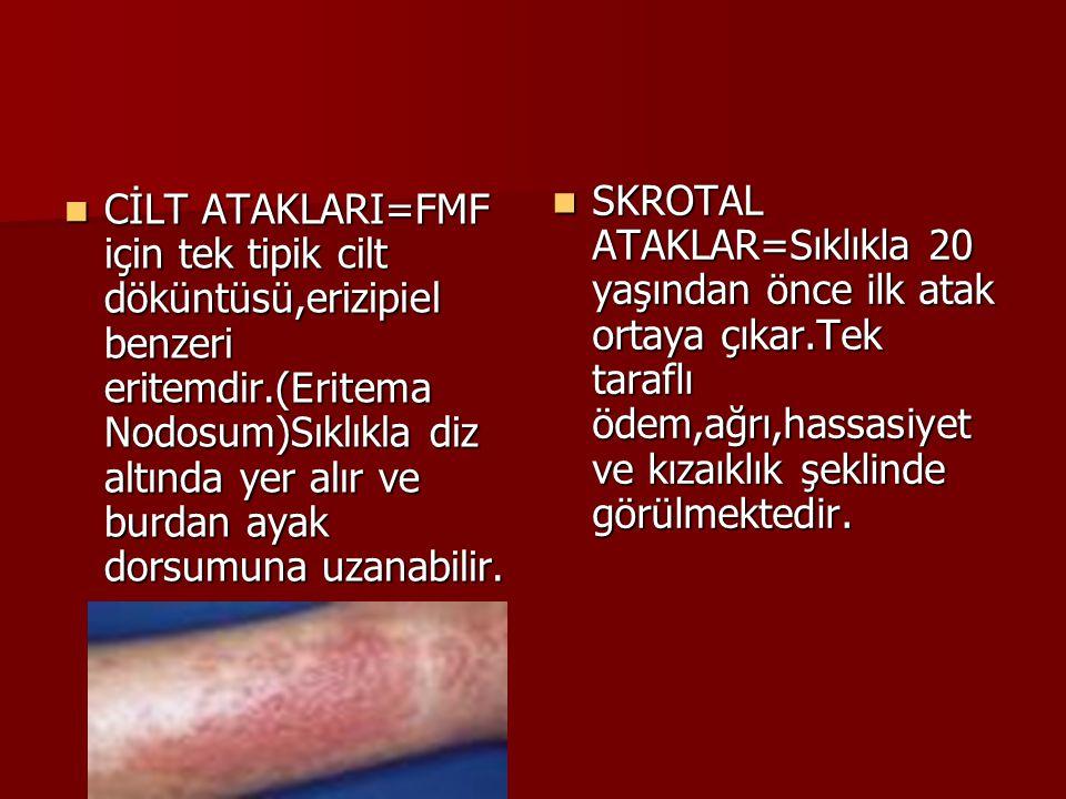 CİLT ATAKLARI=FMF için tek tipik cilt döküntüsü,erizipiel benzeri eritemdir.(Eritema Nodosum)Sıklıkla diz altında yer alır ve burdan ayak dorsumuna uz