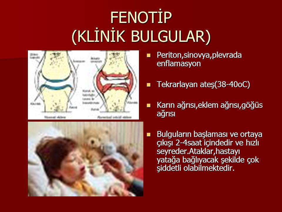 FENOTİP (KLİNİK BULGULAR) Periton,sinovya,plevrada enflamasyon Periton,sinovya,plevrada enflamasyon Tekrarlayan ateş(38-40oC) Tekrarlayan ateş(38-40oC