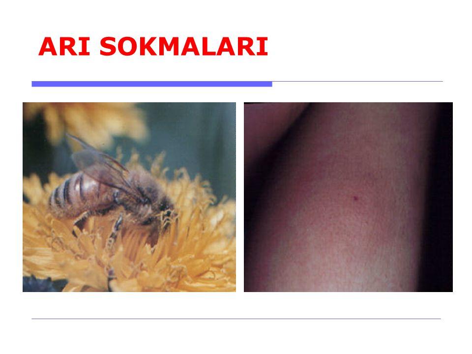 ARI SOKMALARI