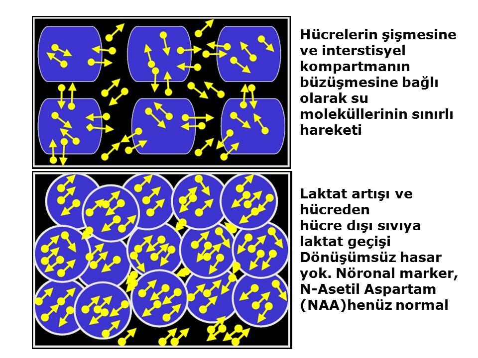 Hücrelerin şişmesine ve interstisyel kompartmanın büzüşmesine bağlı olarak su moleküllerinin sınırlı hareketi Laktat artışı ve hücreden hücre dışı sıv