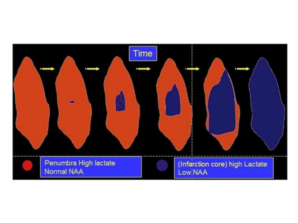 VÜCUT SUYU KOMPARTMANLARININ KOMPOZİSYONU Plazma kompartmanı Kompozisyonu doğrudan ölçülebilir.