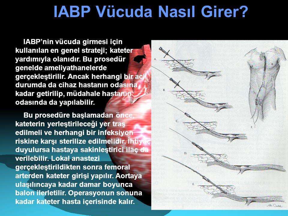 IABP Vücuda Nasıl Girer? IABP'nin vücuda girmesi için kullanılan en genel strateji; kateter yardımıyla olanıdır. Bu prosedür genelde ameliyathanelerde