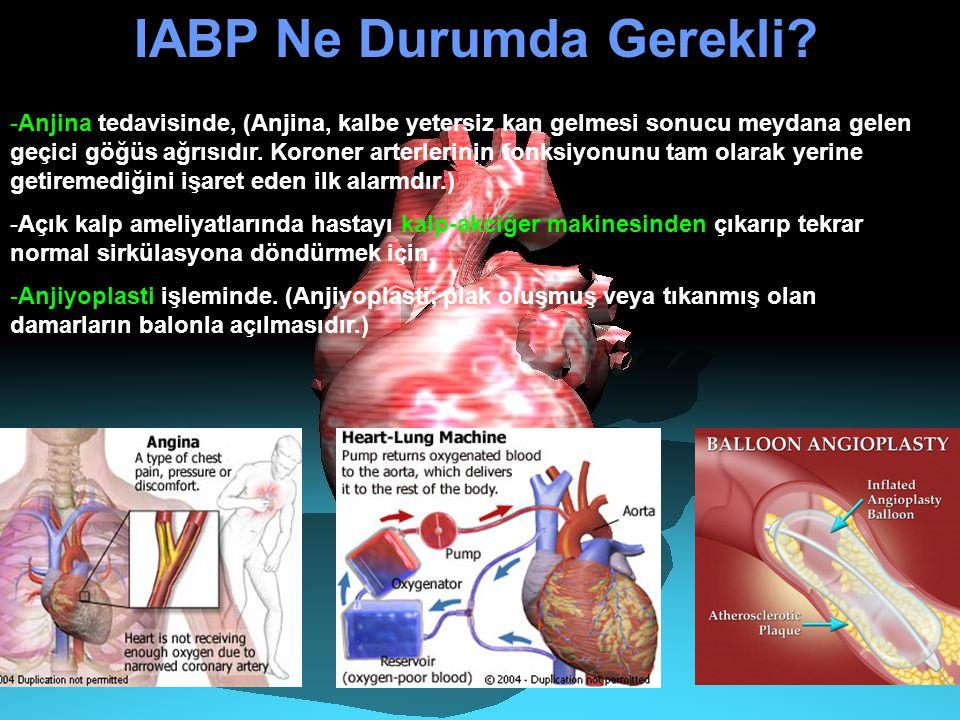 -Anjina tedavisinde, (Anjina, kalbe yetersiz kan gelmesi sonucu meydana gelen geçici göğüs ağrısıdır. Koroner arterlerinin fonksiyonunu tam olarak yer
