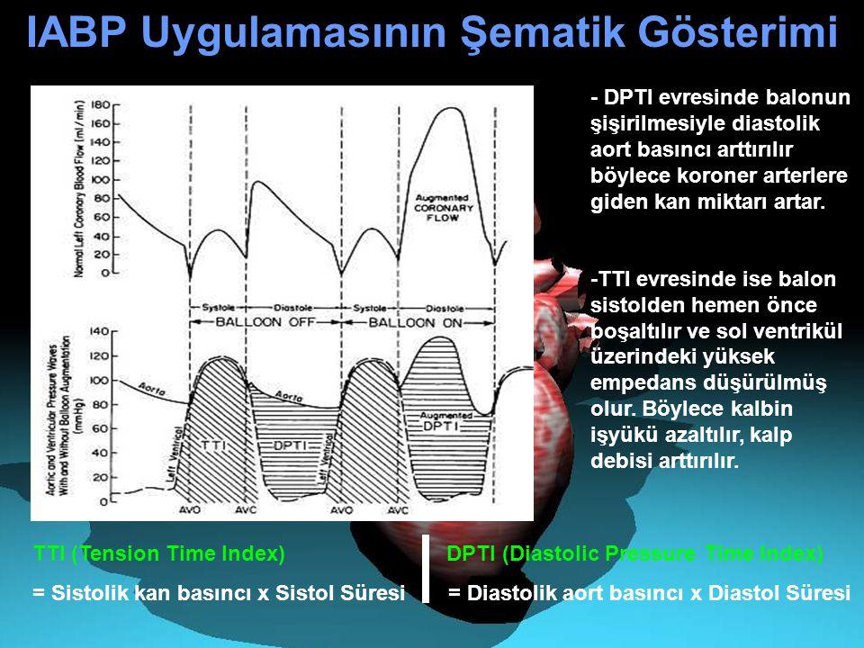 TTI (Tension Time Index) DPTI (Diastolic Pressure Time Index) = Sistolik kan basıncı x Sistol Süresi = Diastolik aort basıncı x Diastol Süresi - DPTI