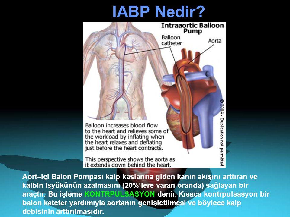IABP Nedir? Aort–içi Balon Pompası kalp kaslarına giden kanın akışını arttıran ve kalbin işyükünün azalmasını (20%'lere varan oranda) sağlayan bir ara