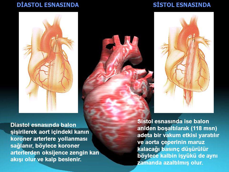 YARARLARI ----------------------------------------- -Kan dolaşımını arttırır - Kalp ritmini ve kalbin işyükünü azaltır, kalbin verimini arttırır - Dokulara daha fazla oksijen gitmesine yardımcı olur - Sistol esnasında aortun basınç direnci düşer - Diastol esnasında ise aortun basınç direnci yükselir, dolayısıyla koroner arterlerin beslenmesi kolaylaştırılır KOMPLİKASYONLAR -------------------------------------- - Aortun zarar görmesi -Kateterin girdiği bölgede ağır kanama -İskemi (Dokulara kan sağlayan damarların, bir pıhtı veya mekanik etkenle tıkanması sonucu dokunun beslenmesinin bozulmasına iskemi denir.) -İnfeksiyon -Balonda oluşabilecek herhangi bir yırtılma sonucu gazın damar içerisinde potansiyel bir tehlike yaratması