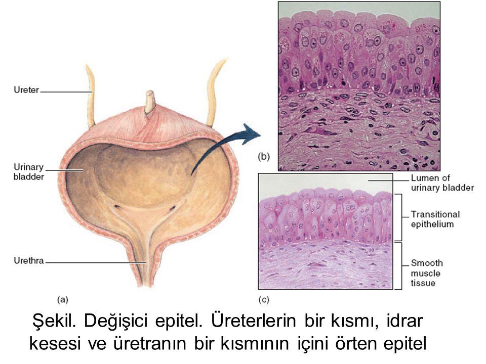 Şekil. Çok hücreli ekzokrin bezlerin yaısal sınuıflandırılması