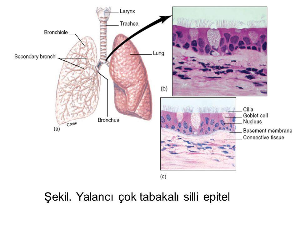 Şekil. Endoepitelial, tek salgı hücresi. Goblet hücresi
