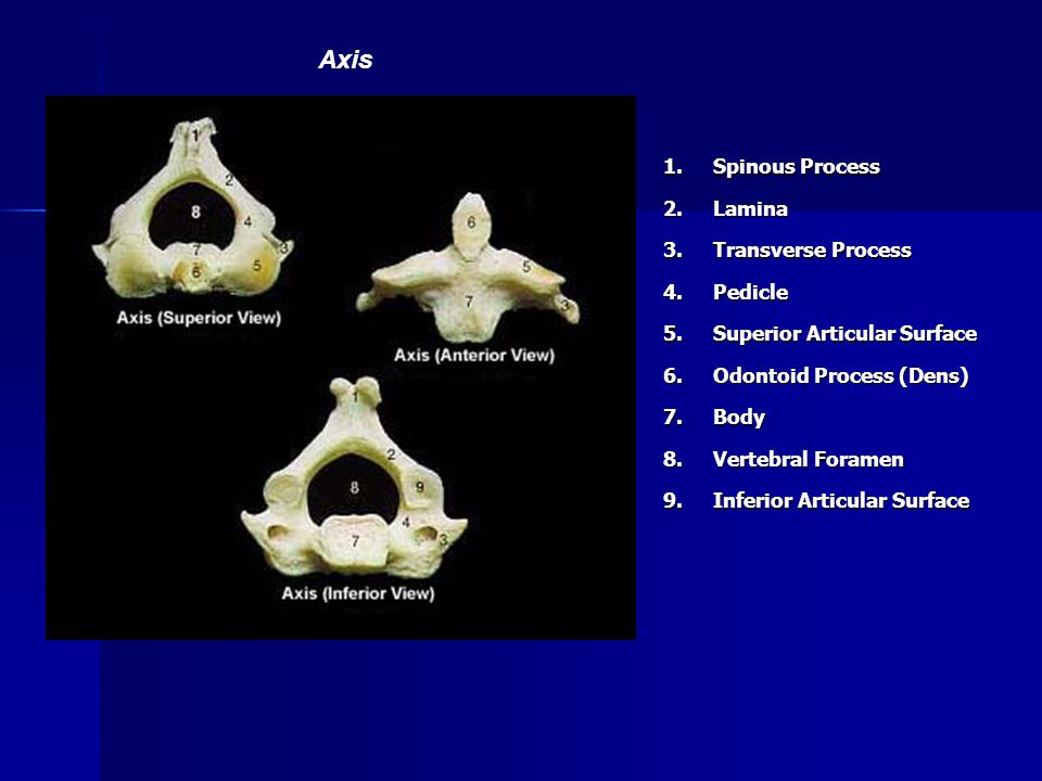 1. Spinous Process 2.Lamina 3. Transverse Process 4.Pedicle 5. Superior Articular Surface 6. Odontoid Process (Dens) 7.Body 8. Vertebral Foramen 9. In