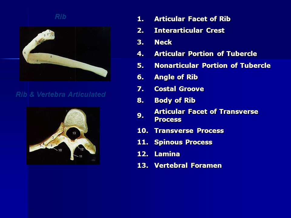 Rib & Vertebra Articulated Rib1. Articular Facet of Rib 2. Interarticular Crest 3.Neck 4. Articular Portion of Tubercle 5. Nonarticular Portion of Tub