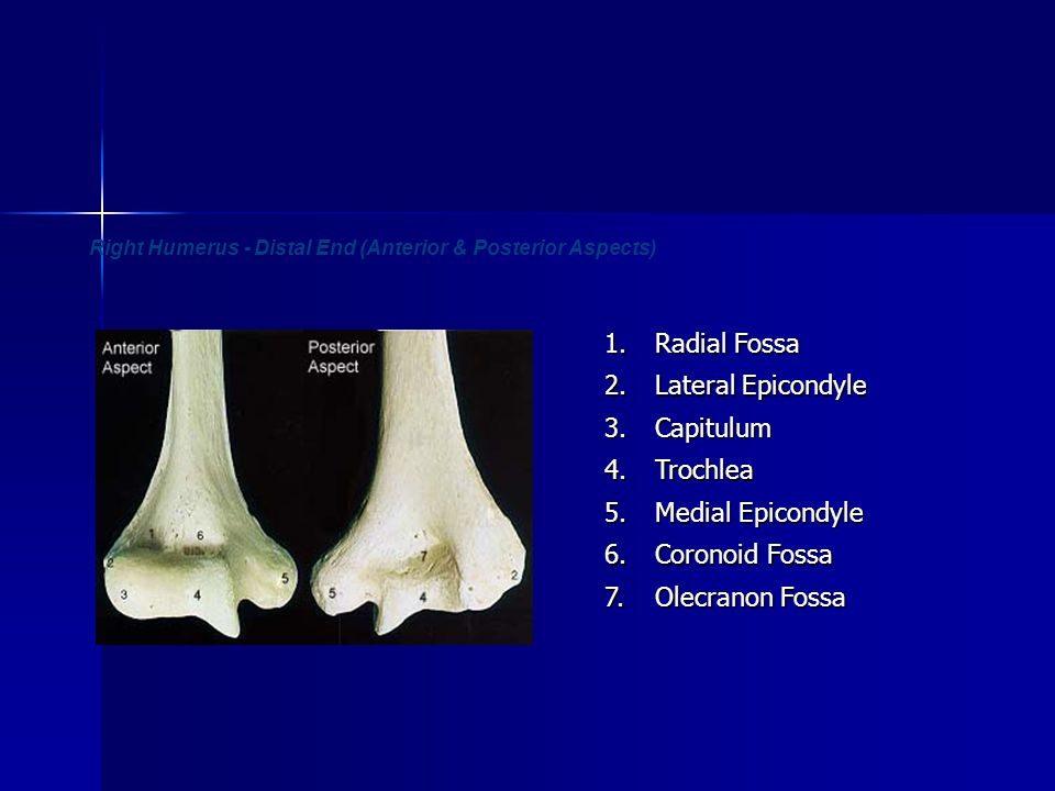 Right Humerus - Distal End (Anterior & Posterior Aspects)1. Radial Fossa 2. Lateral Epicondyle 3.Capitulum 4.Trochlea 5. Medial Epicondyle 6. Coronoid