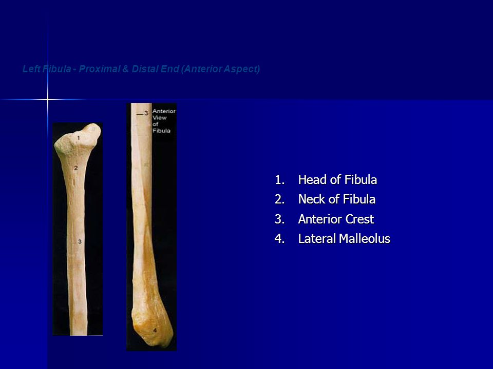 Left Fibula - Proximal & Distal End (Anterior Aspect)1. Head of Fibula 2. Neck of Fibula 3. Anterior Crest 4. Lateral Malleolus