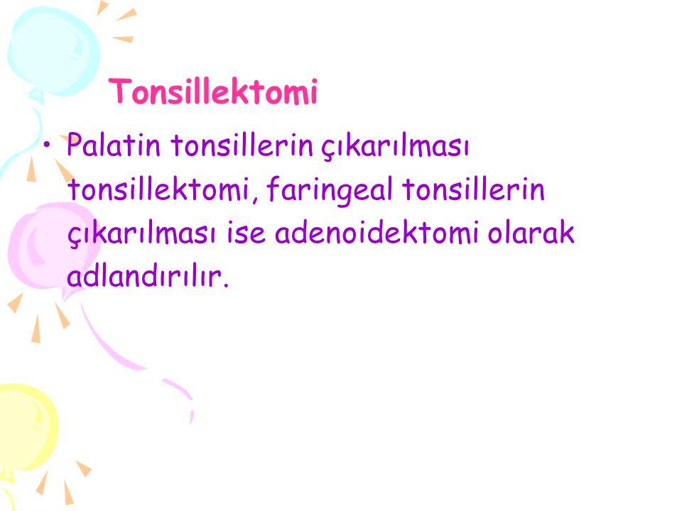Tonsillektomi Palatin tonsillerin çıkarılması tonsillektomi, faringeal tonsillerin çıkarılması ise adenoidektomi olarak adlandırılır.