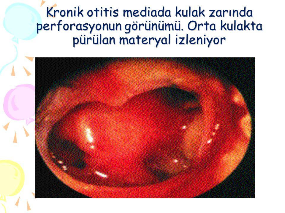 Kronik otitis mediada kulak zarında perforasyonun görünümü. Orta kulakta pürülan materyal izleniyor