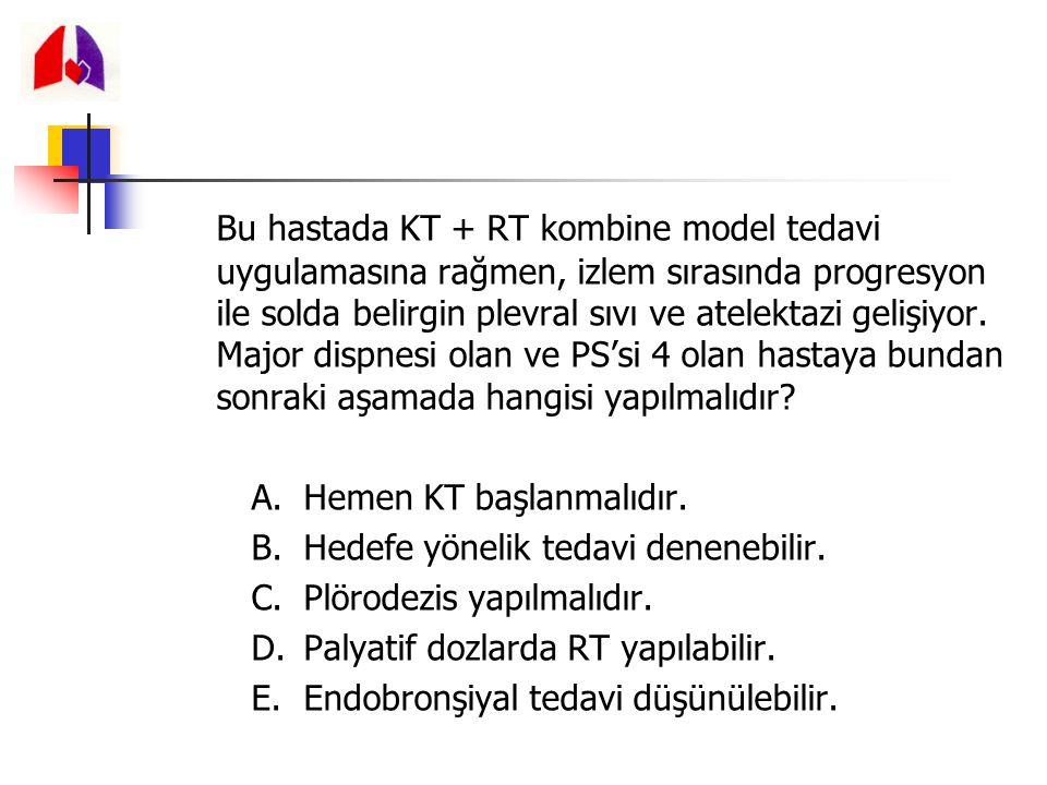 Bu hastada KT + RT kombine model tedavi uygulamasına rağmen, izlem sırasında progresyon ile solda belirgin plevral sıvı ve atelektazi gelişiyor. Major