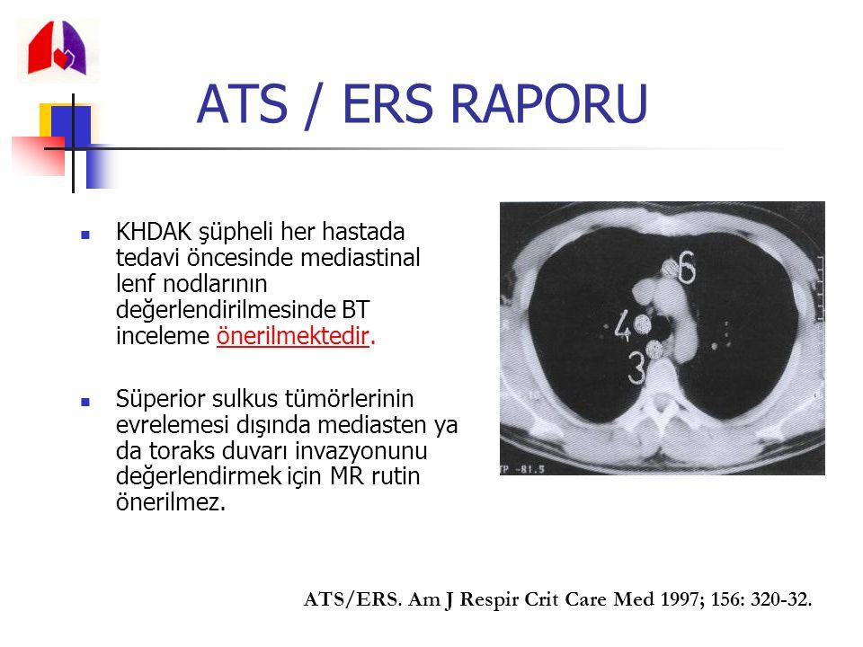 ATS / ERS RAPORU KHDAK şüpheli her hastada tedavi öncesinde mediastinal lenf nodlarının değerlendirilmesinde BT inceleme önerilmektedir. Süperior sulk