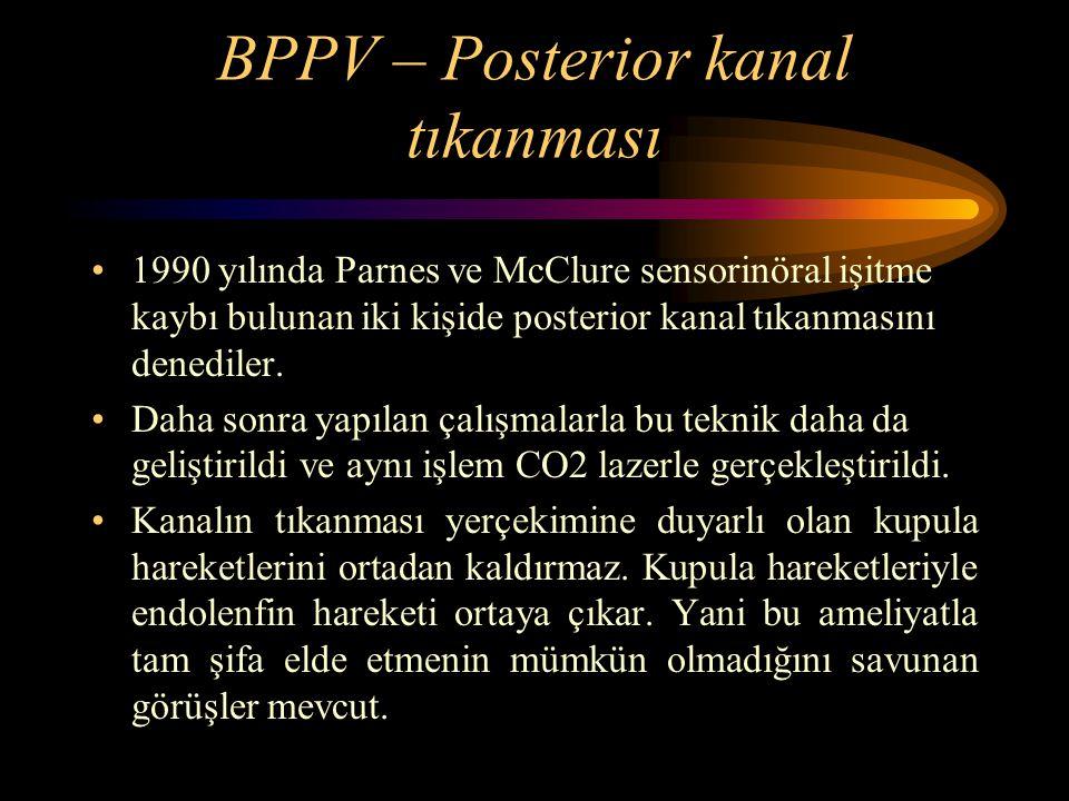 BPPV – Posterior kanal tıkanması 1990 yılında Parnes ve McClure sensorinöral işitme kaybı bulunan iki kişide posterior kanal tıkanmasını denediler. Da