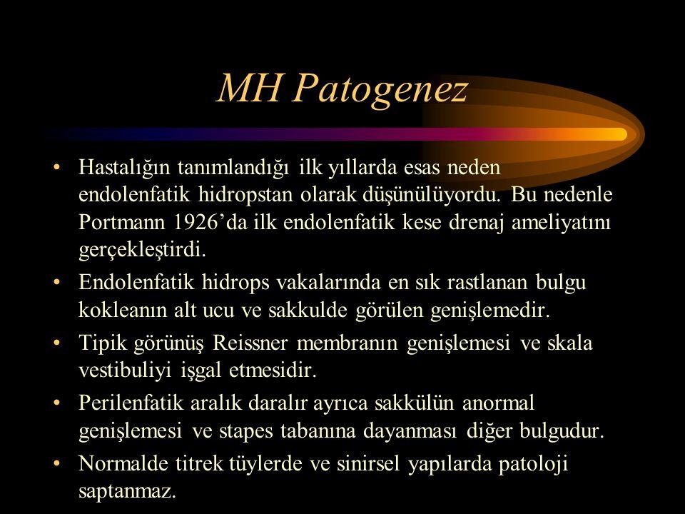 MH Patogenez Hastalığın tanımlandığı ilk yıllarda esas neden endolenfatik hidropstan olarak düşünülüyordu. Bu nedenle Portmann 1926'da ilk endolenfati